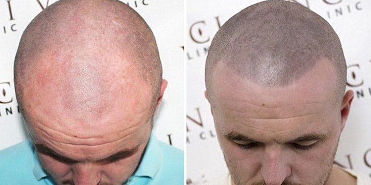 Some Bald Men Are Getting Tattoos So It Looks Like They