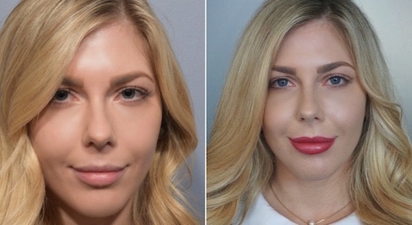 I Got Lip Fillers Like Kylie Jenner, And Here's What You Need To Know