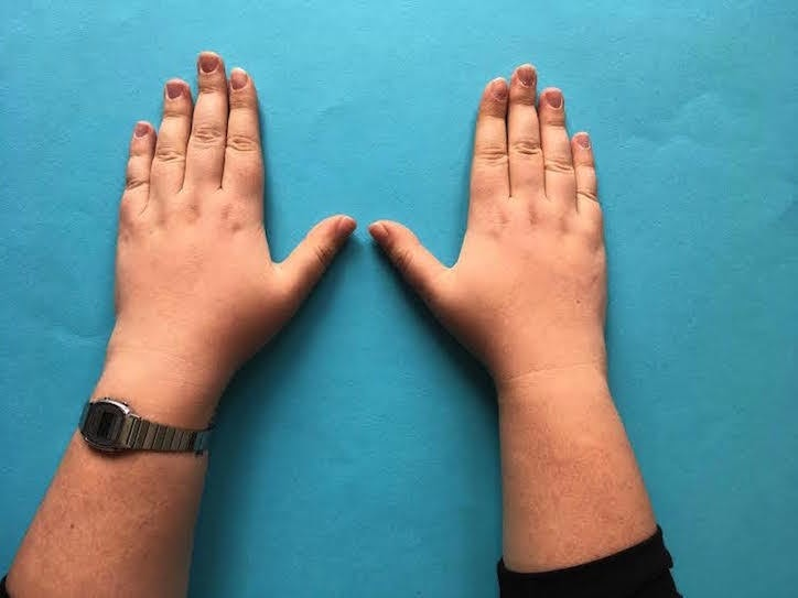 The Size Of Your Pointer And Ring Fingers Can Reveal Way