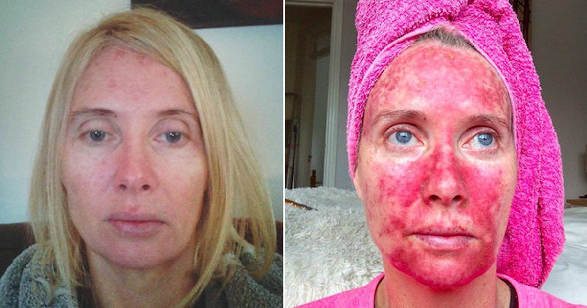 Woman S Before And After Pics Show Treatment Post Tanning