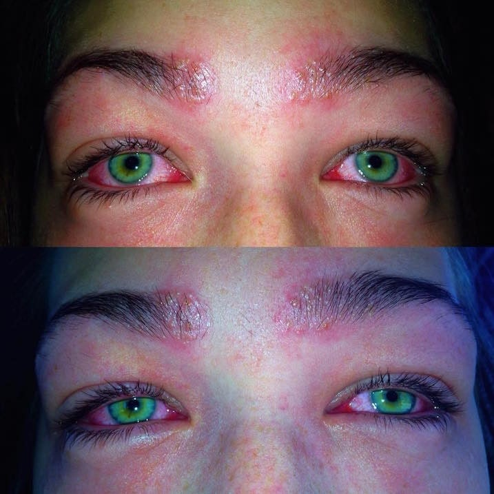 Teens Side By Side Pics Show Reaction To Eyebrow Tint