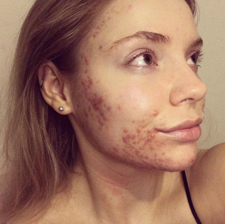 dating a girl with bad acne