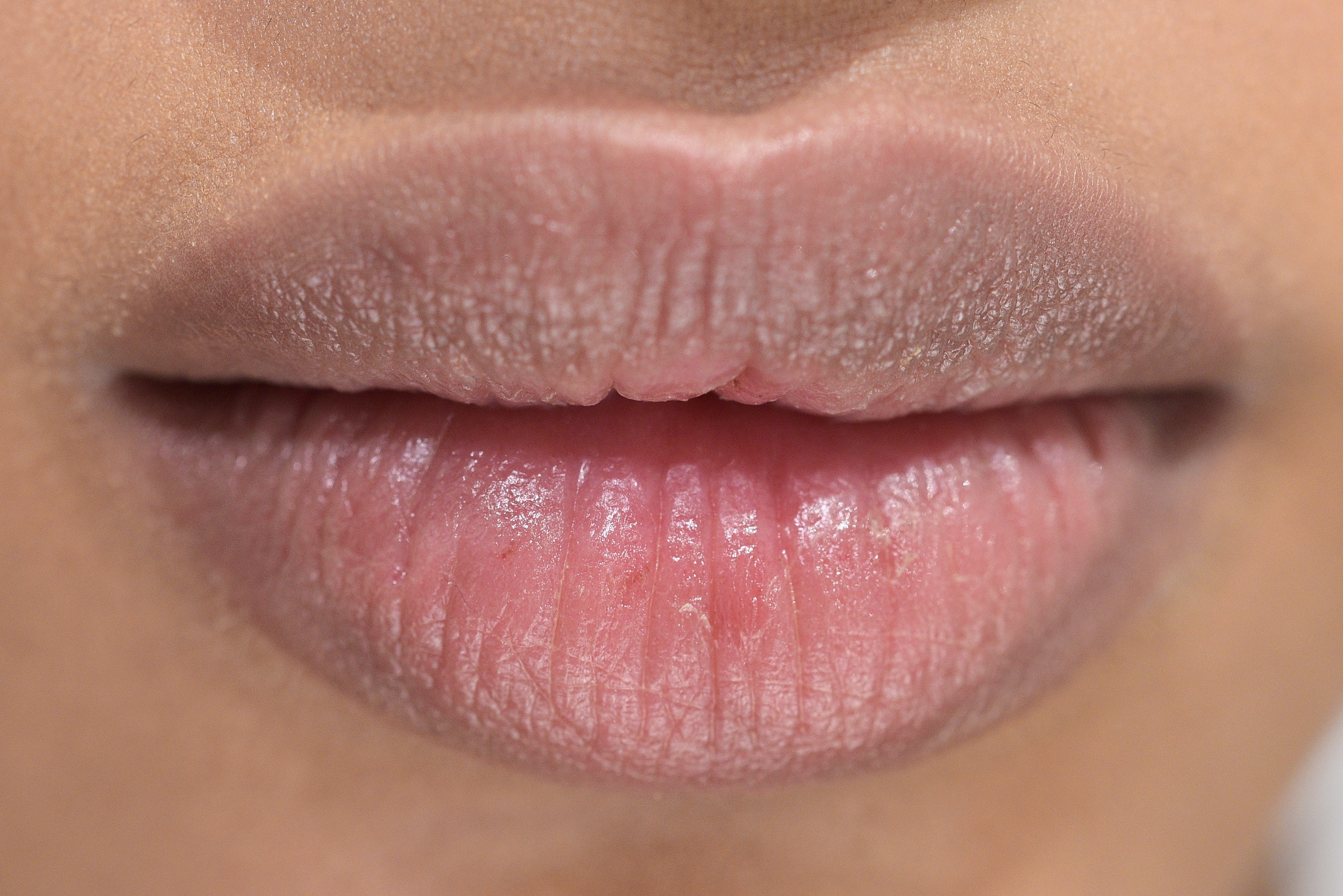 7 Ways Chapped Lips Could Be A Sign of Something Else