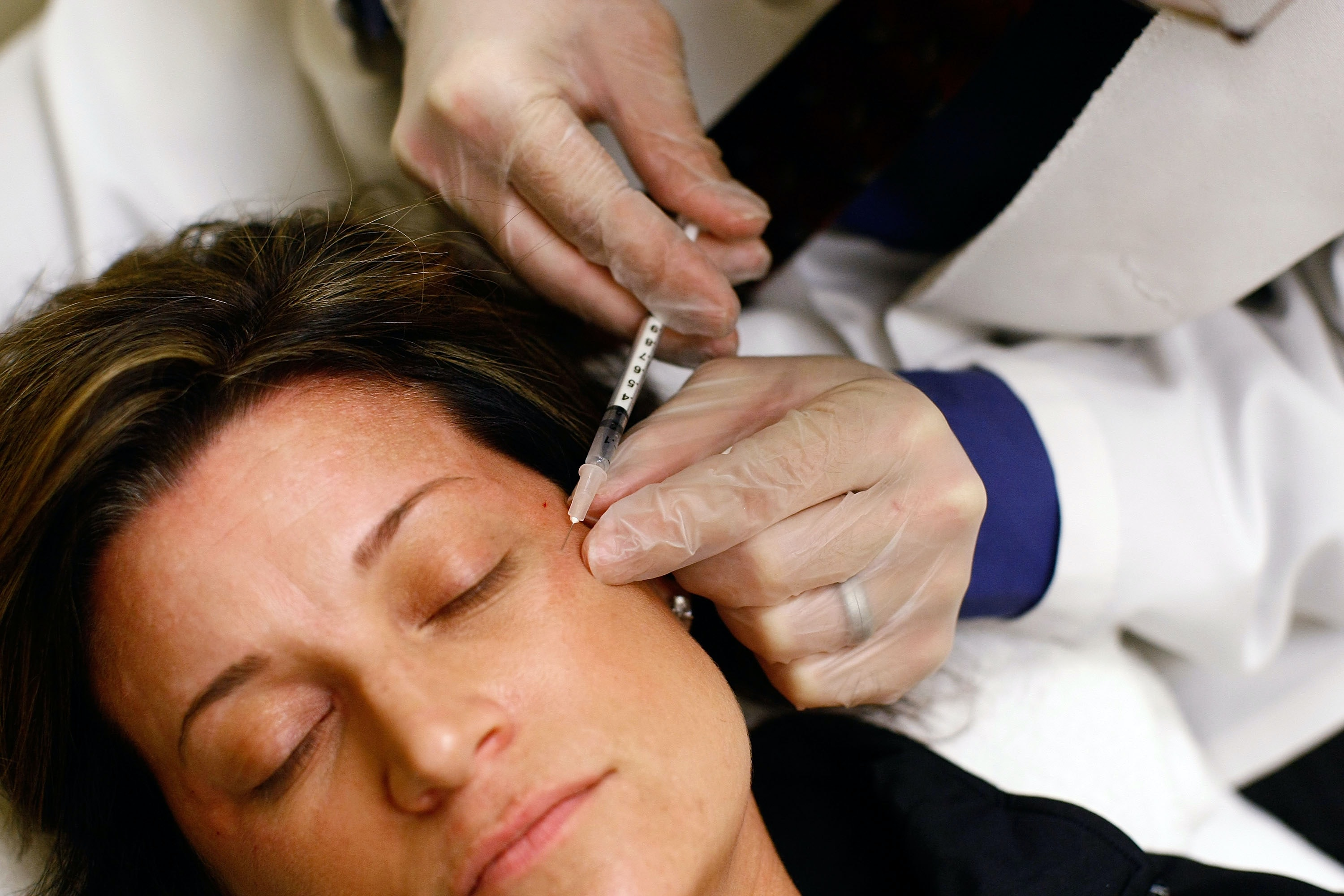 Is Botched Botox Fixable? Sort Of, But Do You Really Want To Take