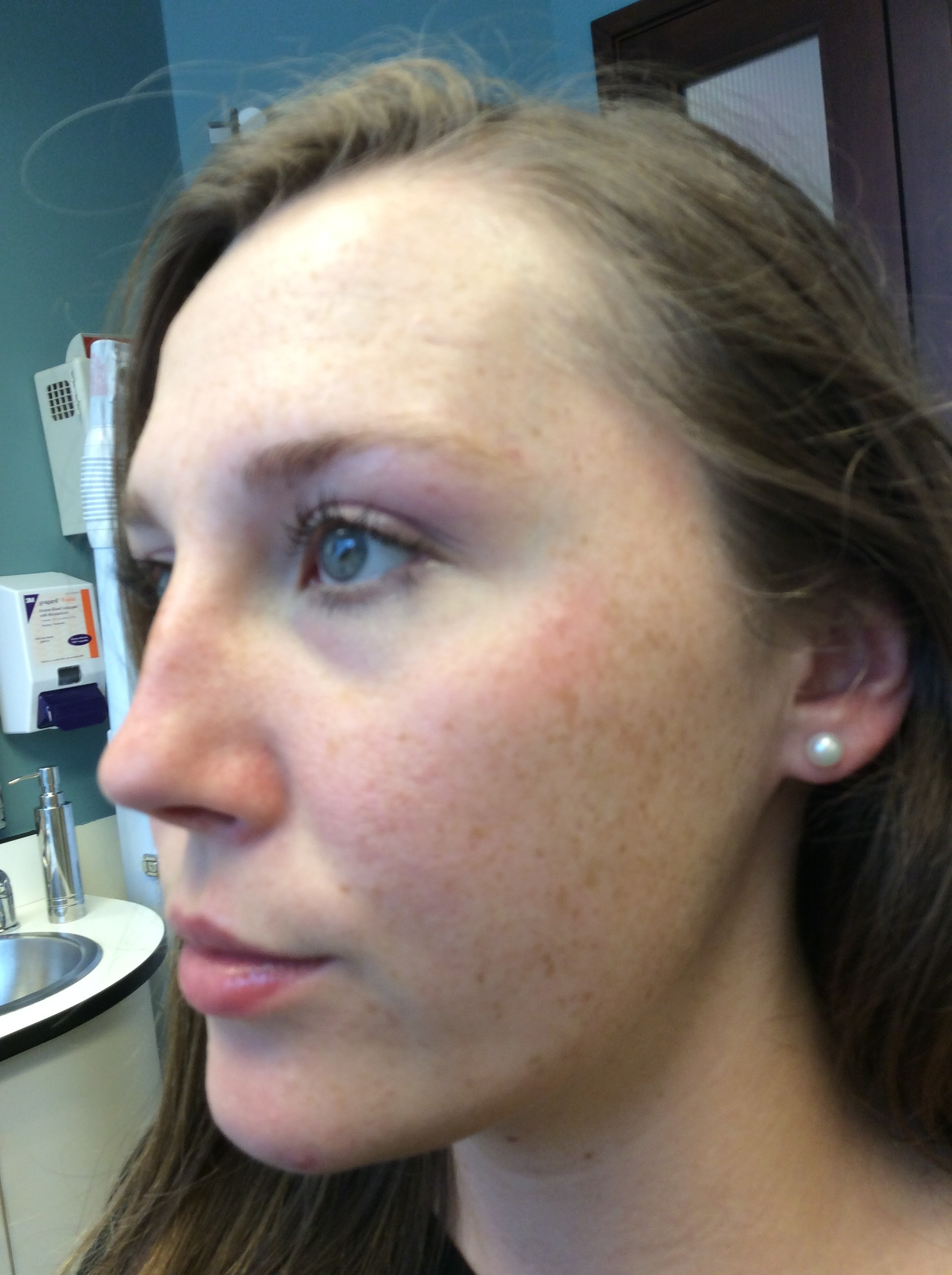 I Tried Laser Treatment To Help With My Rosacea & I Was Amazed With