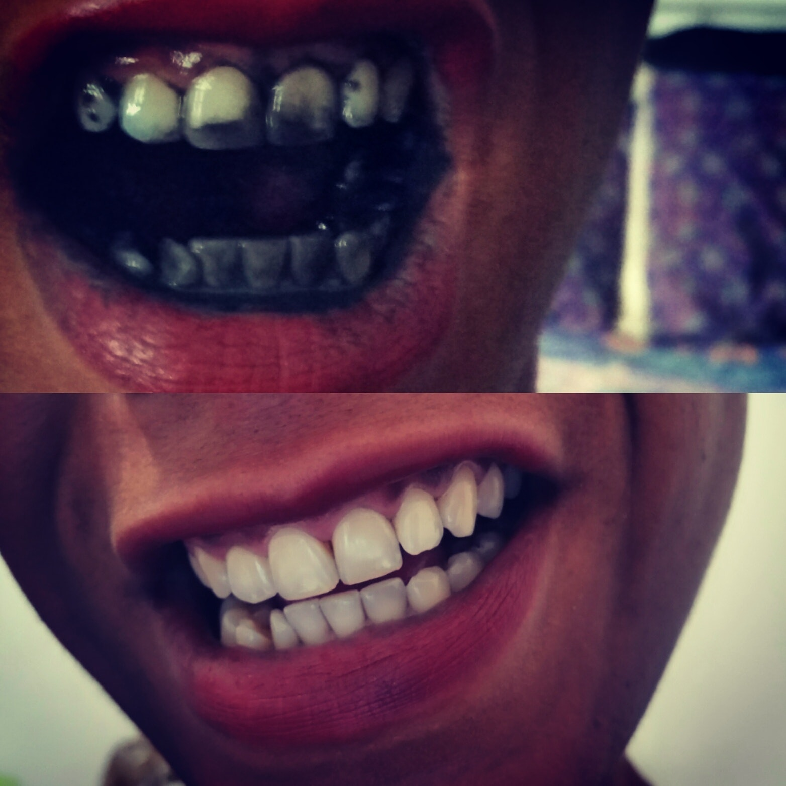 I Tested 6 Home Remedies To Whiten Teeth This One Worked The Best