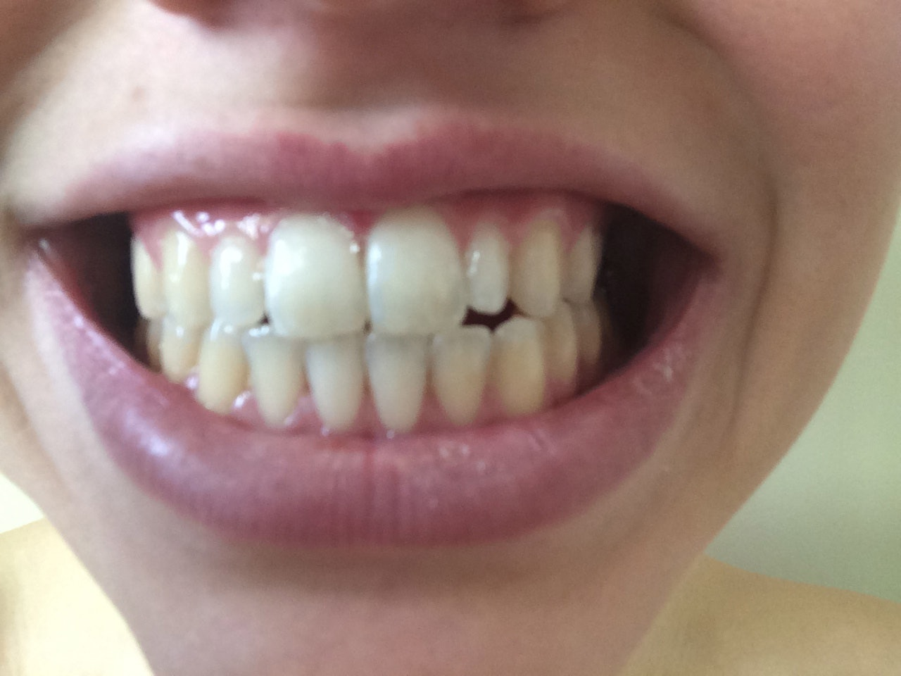 Does Oil Pulling Work To Whiten Your Teeth I Tried It For A Week