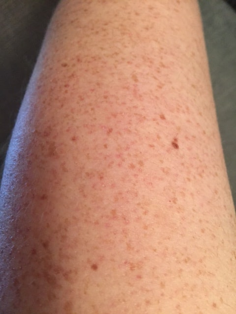 pimples on arms
