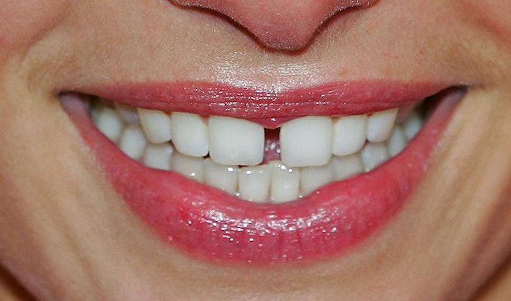 Science Regrows Teeth Using Lasers Amp Dental Stem Cells Magic