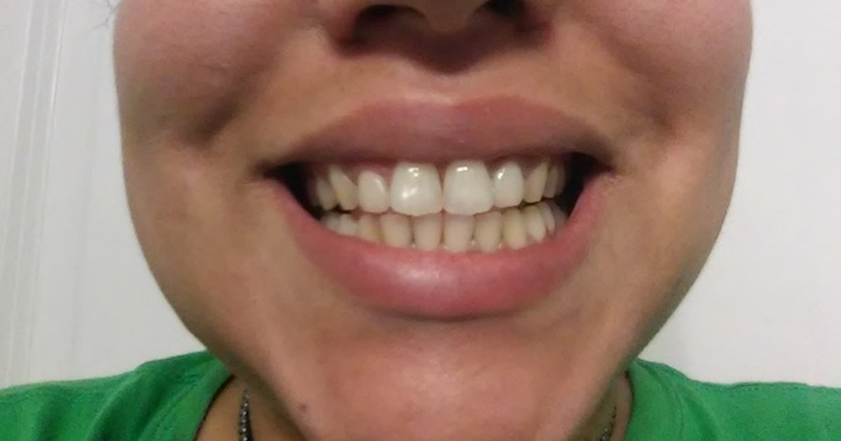 Does Activated Charcoal Whiten Teeth I Brushed With It