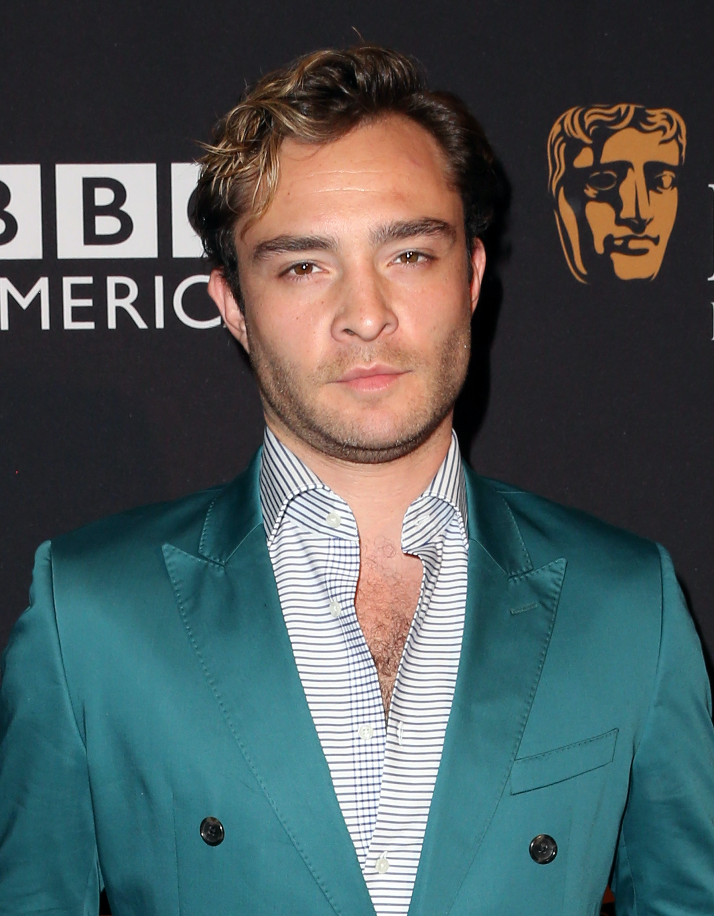 Ed Westwick shoots down rape allegation