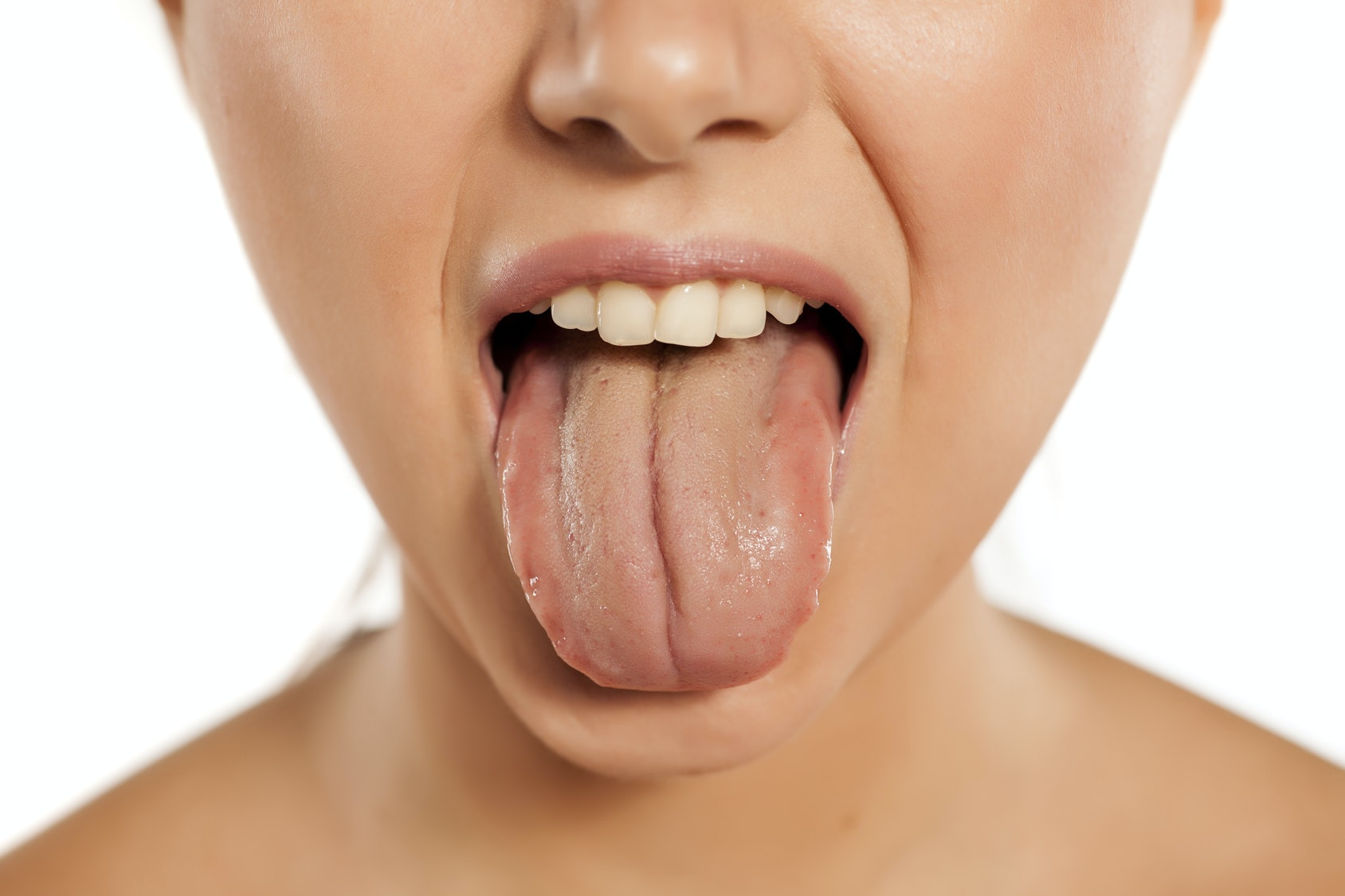 10 Things Your Tongue Can Tell You About Your Health, Based