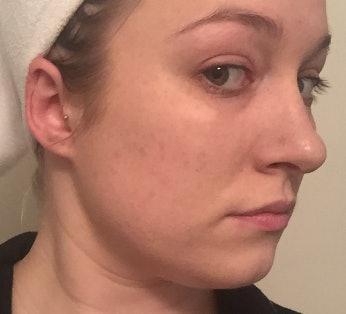 Does Microneedling Work? This Kardashian-Approved Skin Procedure