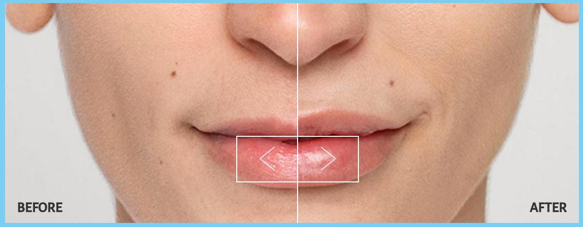What Are The Different Types Of Lip Injections? Here's What You