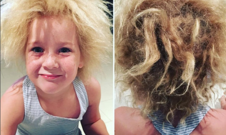 Uncombable Hair Syndrome Is A Thing That Actually Exists ...