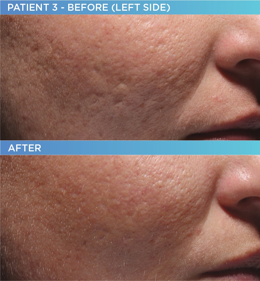 How To Get Rid Of Acne Scars For Good With Bellafill